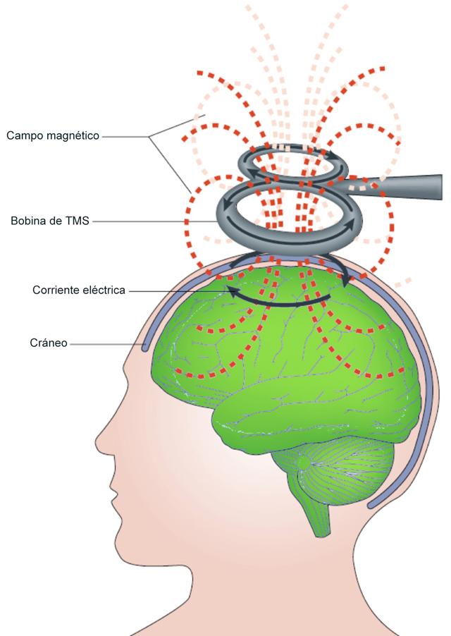 Figura 1. Representación gráfica del funcionamiento de la TMS.