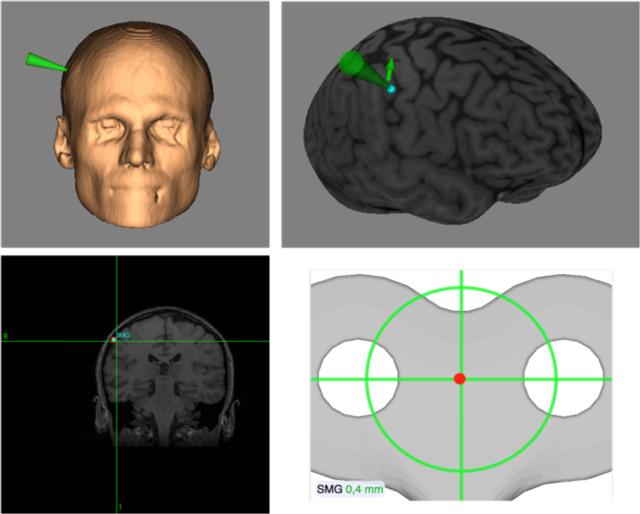 Figura 13. Empleo de la neuronavegación para el guiado de la estimulación con TMS de un área cerebral determinada