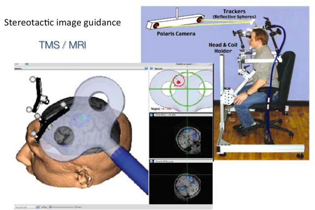 Figura 14. Representación esquemática del funcionamiento del neuronavegador Briansight