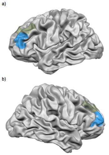 Imagen creada a partir del software libre Brain Voyager (Brain Voyager Tutor): http://www.brainvoyager.com/products/braintutor.html.